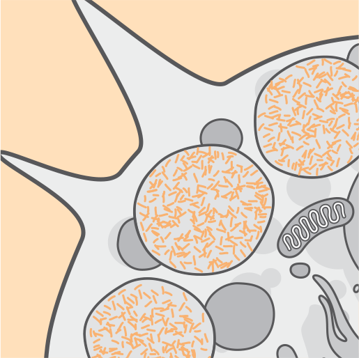 Cell dysfunction, death, and atrophy