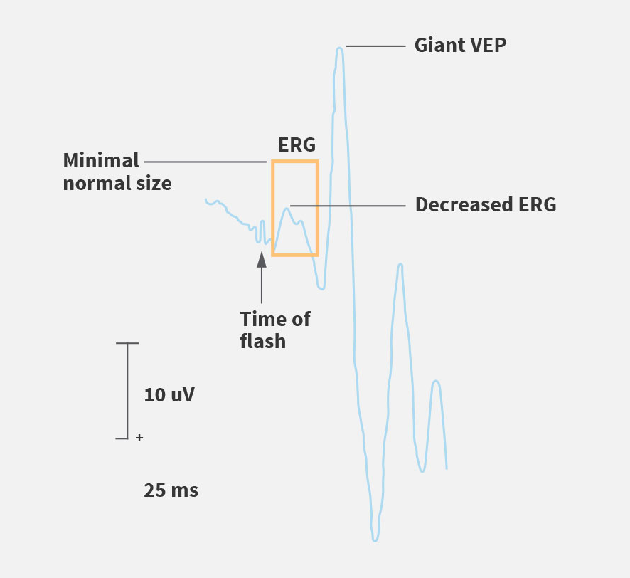 Electroretinogram (ERG) assessment
